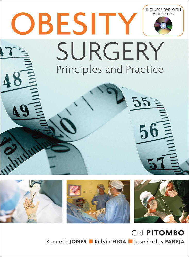 Obesity Surgery: Principles and Practice
