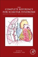 The Complete Reference for Scimitar Syndrome: ANATOMY,EPIDEMIOLOGY,DIAGNOSIS AND TREATMENT