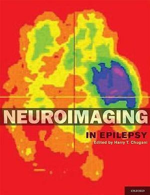 Neuroimaging in Epilepsy