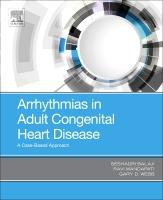 Arrhythmias in Adult Congenital Heart Disease: A Case-Based Approach