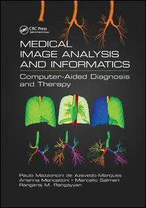 Medical Image Analysis and Informatics