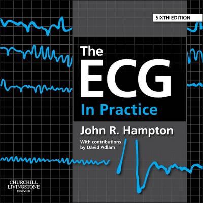 The ECG In Practice, 6e