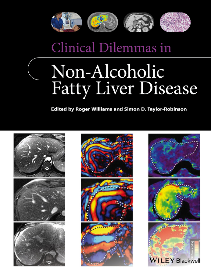 Clinical Dilemmas in Non-Alcoholic Fatty Liver Disease