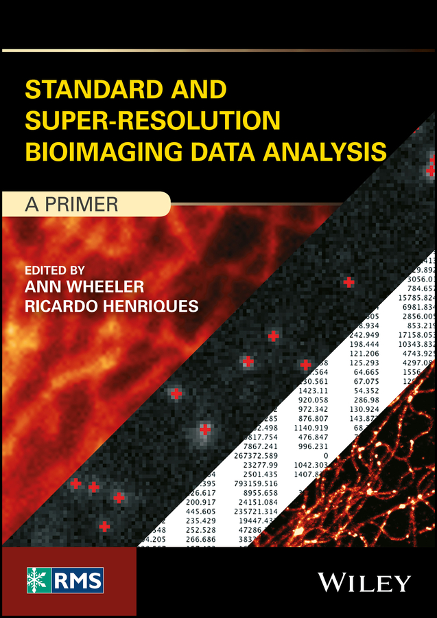 Standard and Super-Resolution Bioimaging Data Analysis