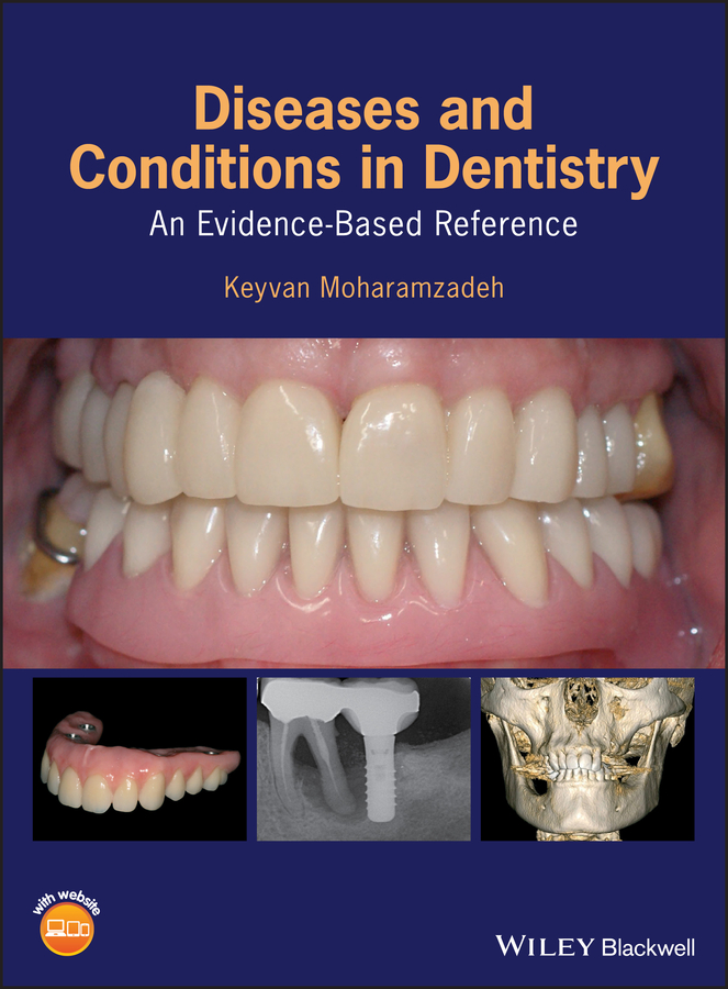 Diseases and Conditions in Dentistry