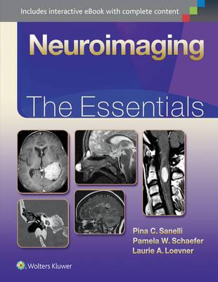 Neuroimaging: The Essentials