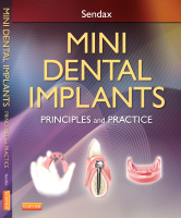 Mini Dental Implants: Principles and Practices 1e