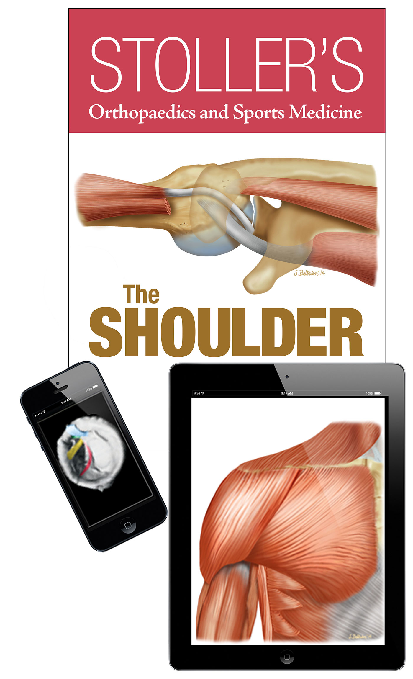 Enhanced Edition - Stoller's Orthopaedics and Sports Medicine: The Shoulder (Print + eBook bundle)