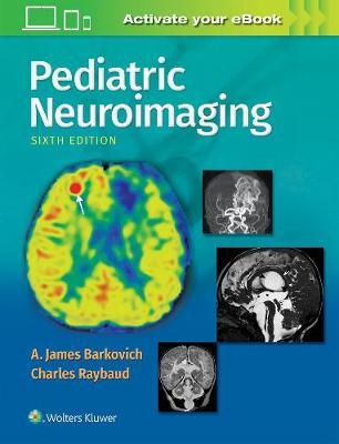 Pediatric Neuroimaging