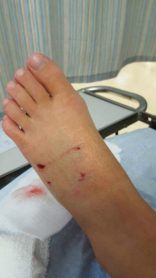 The injury to Jessica's foot.