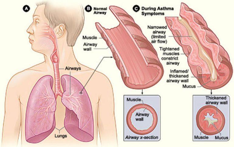 15 Asthma Schematic