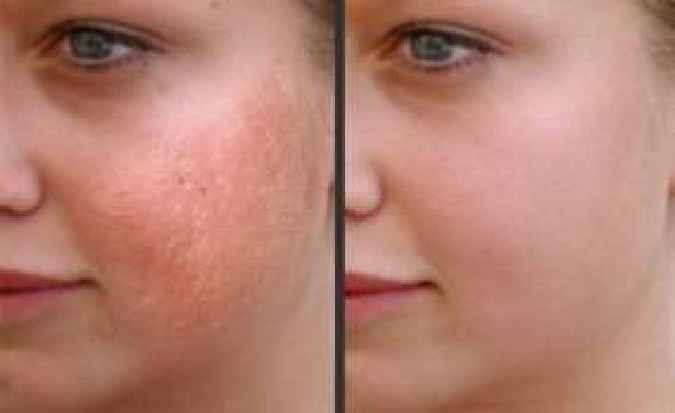 Laser Skin Resurfacing Before and After Pictures Little