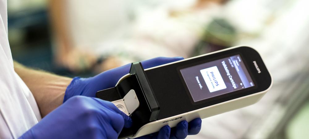 A handheld concussion detection device