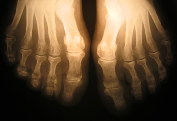 High-res bone scans without the radiation
