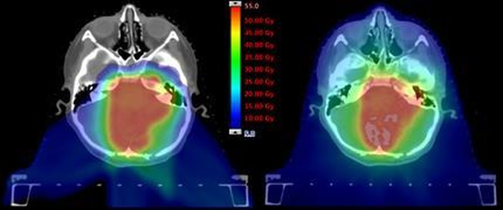 Radiotherapy Treatment Plans Created With Impt And Vmat