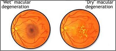 macular degeneration, arm, age related macular degeneration, armd ...