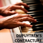 Dupuytrene's Contracture