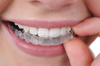 Patient putting in their invisalign in Pennant Hills