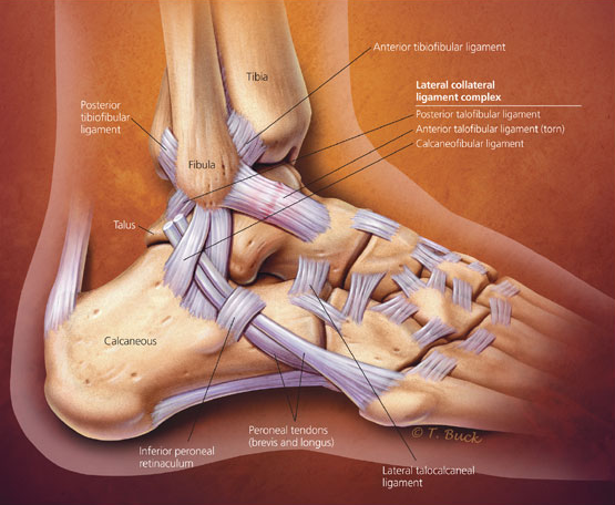 What You Need To Know About Ankle Injuries  U0026 Sprains