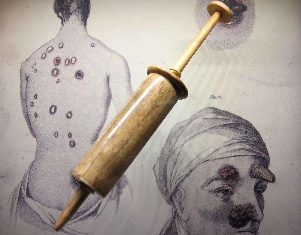 A bone syringe, used for mercury based treatments.