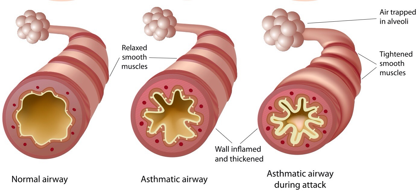 Living With Asthma  Asthma Foundation Nz Diagram Of Asthmatic Airway