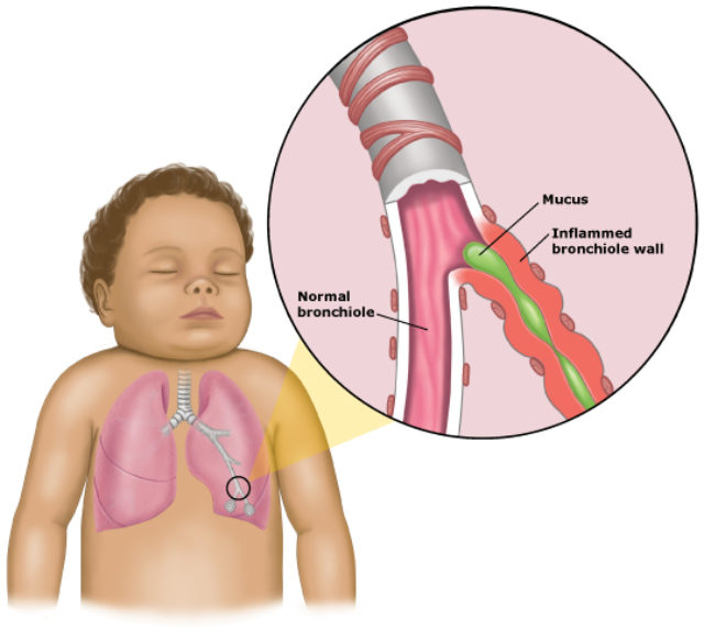 chest virus in babies