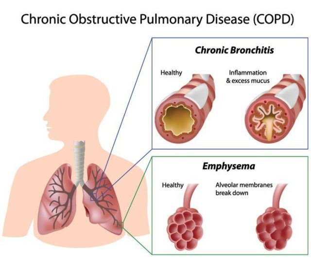 Living with COPD | Asthma Foundation NZ