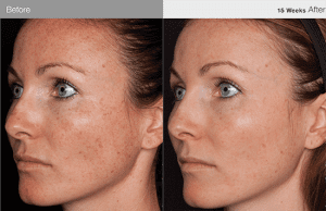 before_after-11-tips-blog