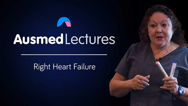 Cover image for lecture: Right Heart Failure