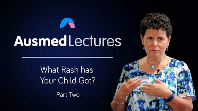 Cover image for lecture: What Rash has Your Child Got? (Part Two)