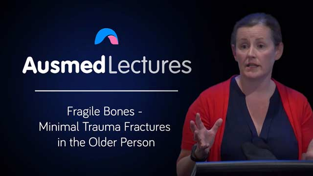 Cover image for lecture: Fragile Bones - Minimal Trauma Fractures in the Older Person
