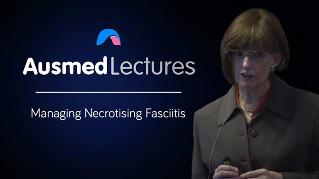 Image for Managing Necrotising Fasciitis
