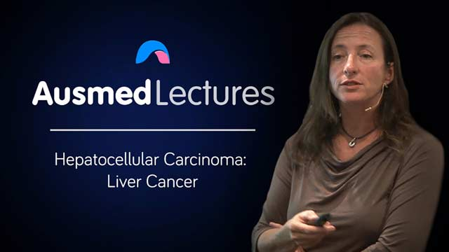 Cover image for lecture: Hepatocellular Carcinoma: Liver Cancer
