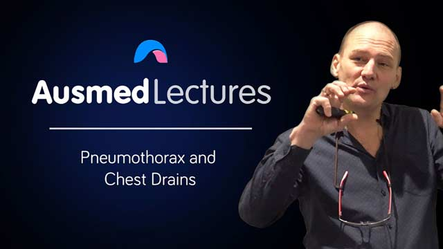 Image for Pneumothorax and Chest Drains