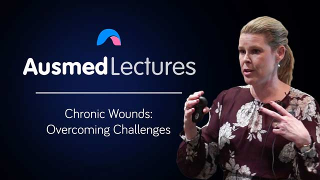 Image for Chronic Wounds: Overcoming Challenges