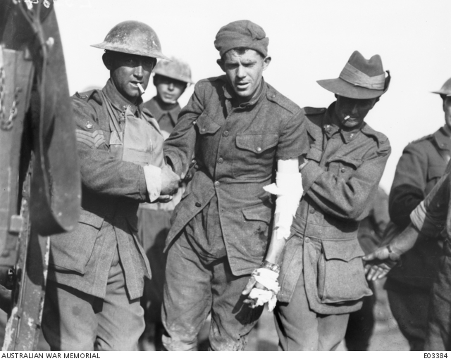Australians assist a wounded American near Ronssoy, 30 September 1918.