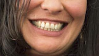 Rachel.house mouth
