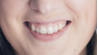 Emma smart headshot mouth