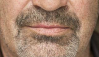 Greg mouth
