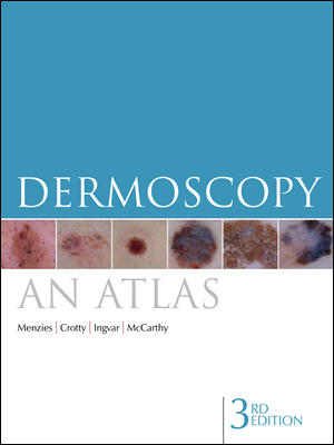 Dermoscopy: An Atlas, 3rd Edition