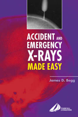 Accident and Emgerency X-rays Made Easy