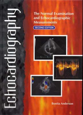 Echocardiography: The Normal Examination of Echocardiographic Measurements