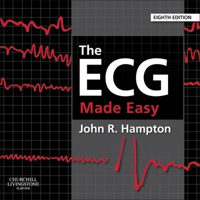The ECG Made Easy E-Book