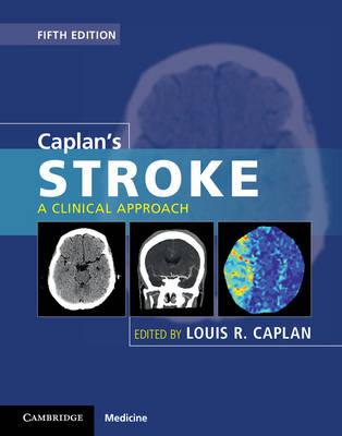 Caplan's Stroke: A Clinical Approach