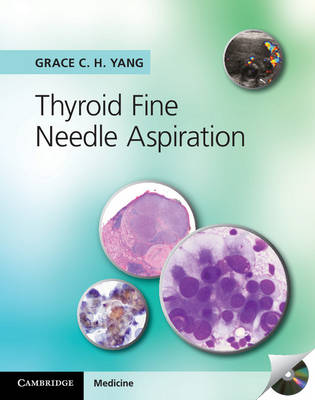 Thyroid Fine Needle Aspiration w CD