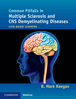 Common Pitfalls in Multiple Sclerosis and CNS Demyelinating Diseases: Case-Based Learning