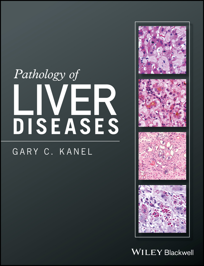 Pathology of Liver Diseases