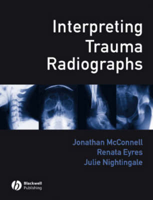 Interpreting Trauma Radiographs