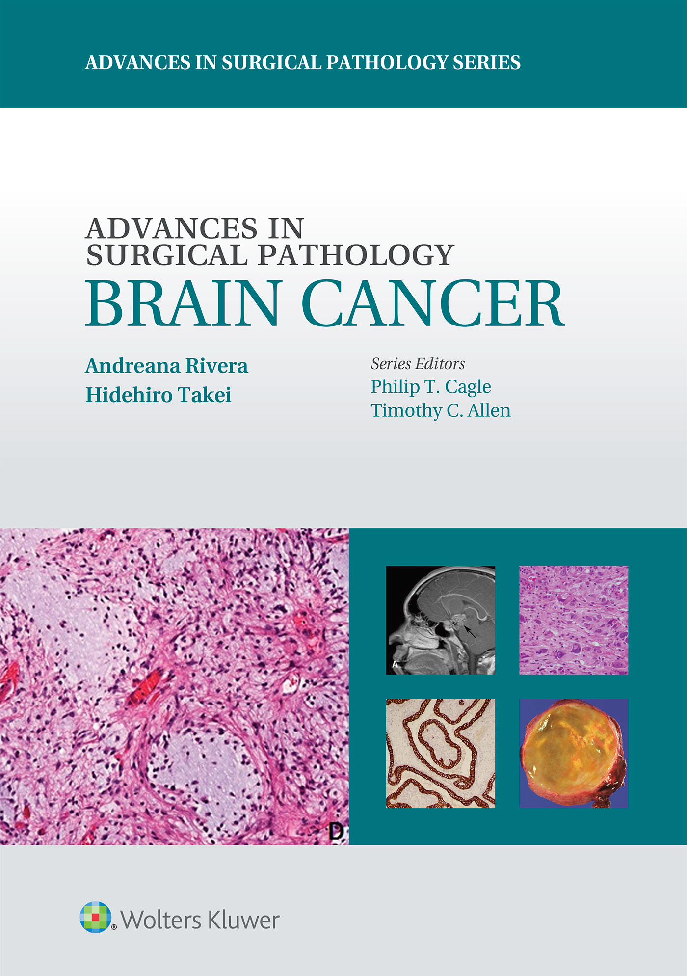 Advances in Surgical Pathology: Brain Cancer