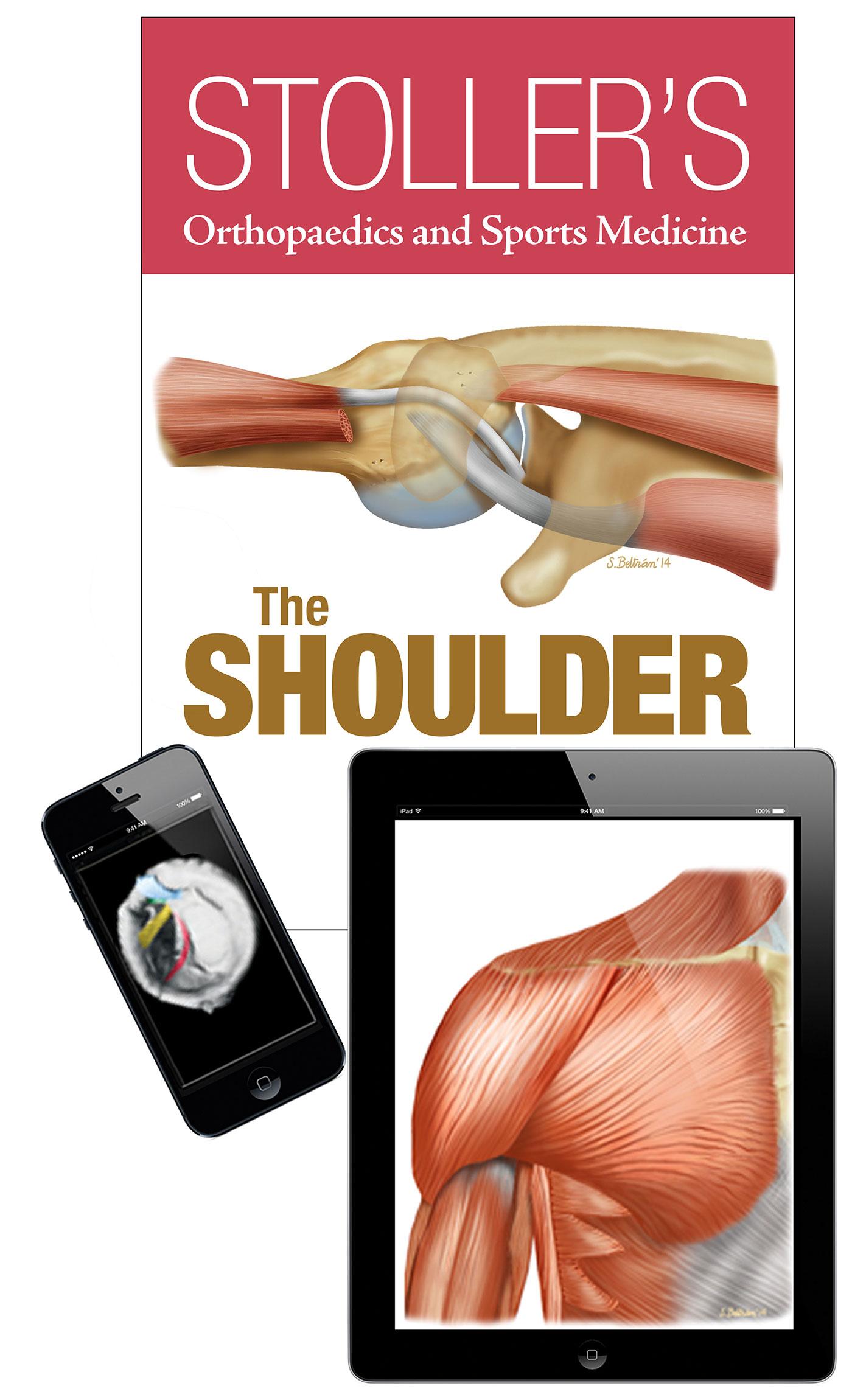 Enhanced Edition - Stoller's Orthopaedics and Sports Medicine:  The Shoulder (Print + eBook bundle)